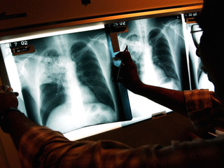 Case of tuberculosis confirmed in Summit County